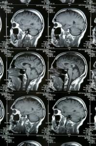 Cat Scan, Photograph, Brain, Head, Inside, Xray